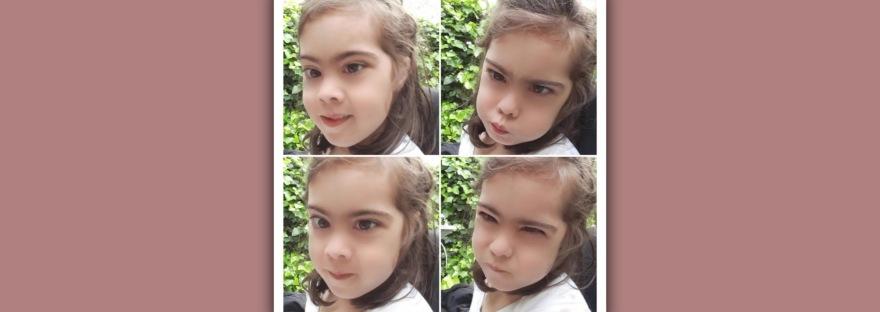 imagen de niña sindrome de down con varias expresiones emocionales