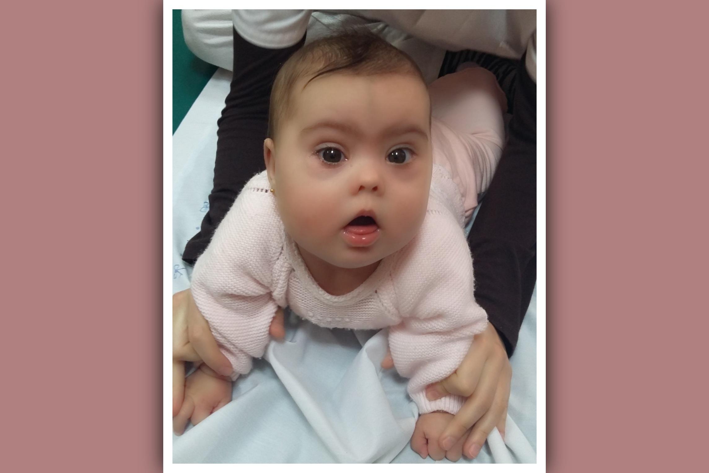 sesion de fisioterapia en bebe con sindrome de down